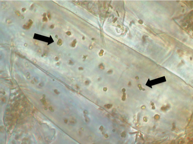 The arrows here point to bacterial microbes inside the root cells in seedlings of Phragmites. Those bacteria could help find a way to control the unwanted reed. Image: Great Lakes Phragmites Collaborative
